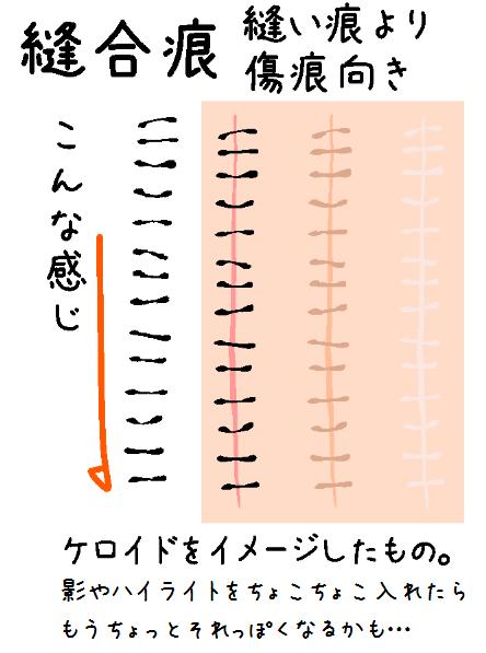 縫合痕ブラシ - CLIP STUDIO ASSETS